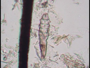 A microscopic image of a Demodex mite.