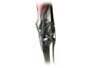 Illustration of patellar luxation. Notice how the knee cap has moved out of the groove it normally resides in.